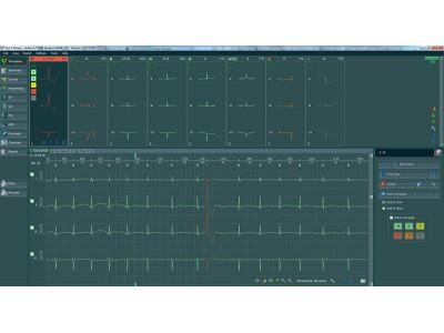 Holter EKG BTL CardioPoint...